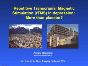 Hausmann rTMS Budapest 2004