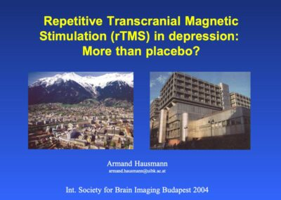 Repetitive Transcranial Magnetic Stimulation (rTMS) in depression: More than placebo?
