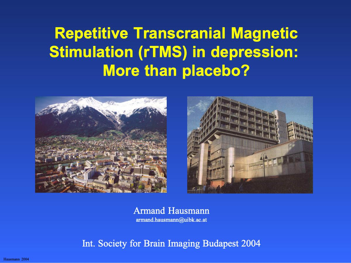 Repetitive Transcranial Magnetic Stimulation (rTMS) in depression: More than placebo? - Psychiater